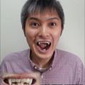 Photos: FANG SHOP 付け牙 A-0276-?(左右側切歯審美Type)