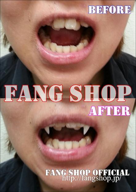 Photos: FANG SHOP 付け牙 A-0277-?(左右側切歯審美Type)