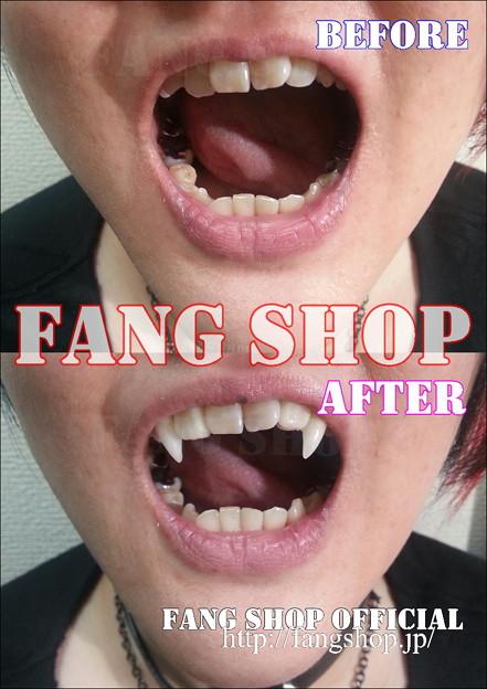 FANG SHOP 付け牙 A-0278(左右側切歯審美Type)
